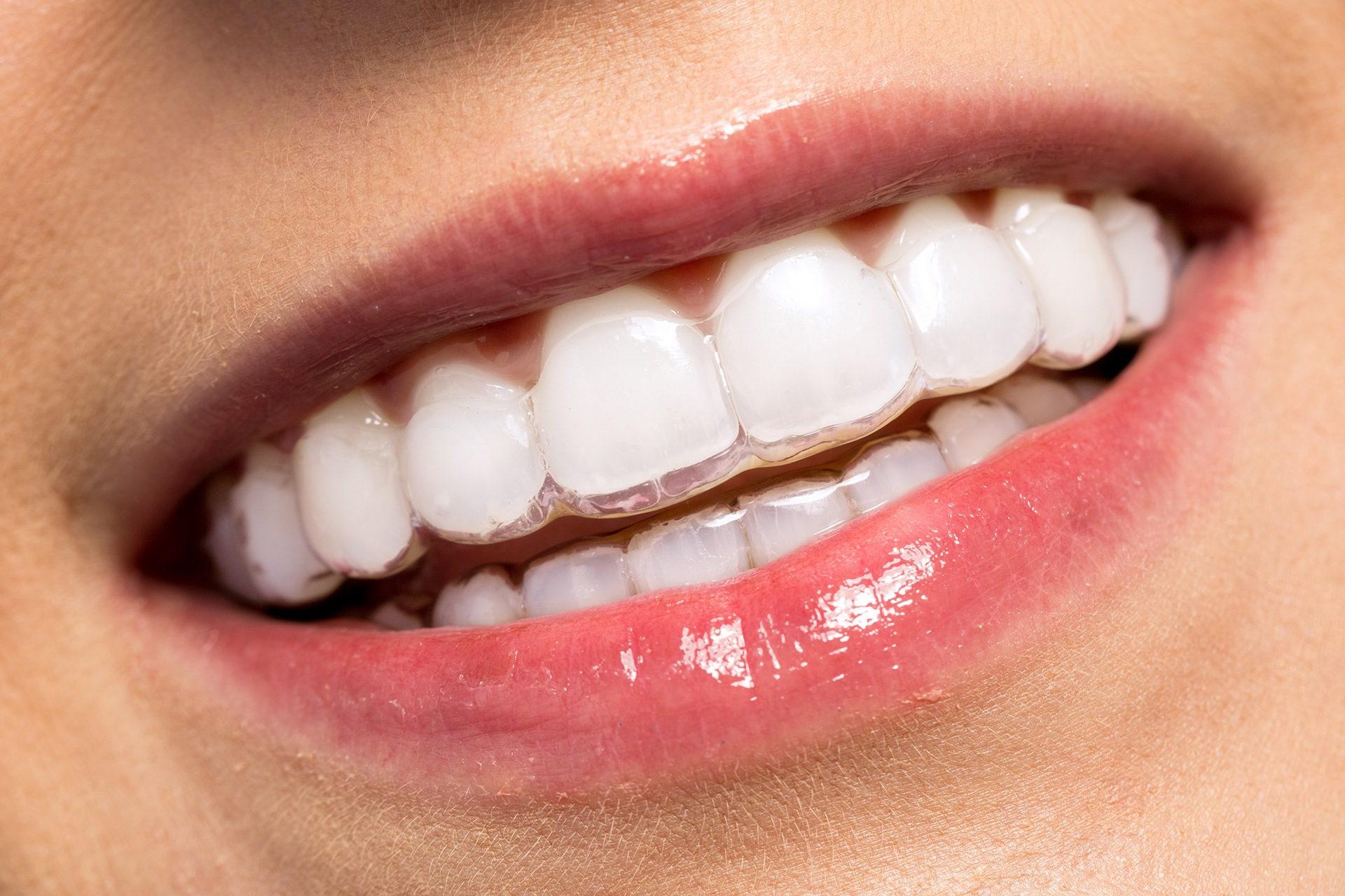 Image result for invisible braces