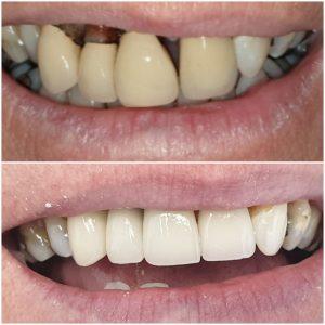 best implants, implants price dentist