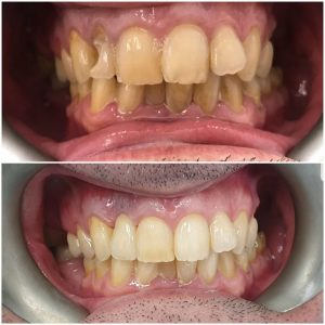 before and after implants, cost implants dentist cambridge