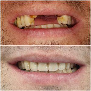 dental implants result, dental implant looks, dental implants end result