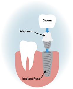 which implant, which material is the best, cost implants dentist