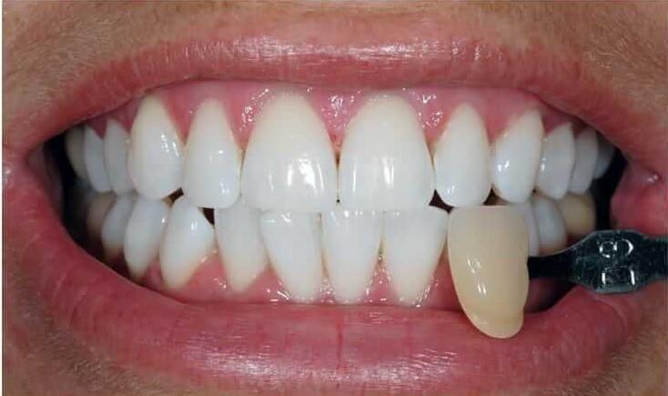 teeth whitening, cosmetic dentistry, best teeth whitening, cheap teeth whitening, best method teeth whitening, which teeth whitening is best, teeth whitening cambridge, teeth whitening dentist nhs, teeth whitening cambridge dentist,