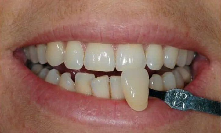 teeth whitening, best teeth whitening, cheap teeth whitening, best method teeth whitening, which teeth whitening is best, teeth whitening cambridge, teeth whitening dentist nhs, teeth whitening cambridge dentist,