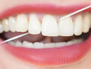 dental cleaning and hygiene