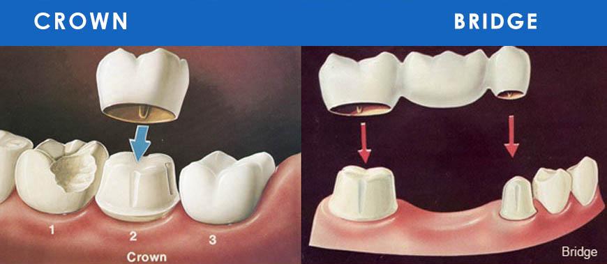 dental crowns and bridges, best dental crown, crowns and bridges, dental crowns nhs dentist cambridge,