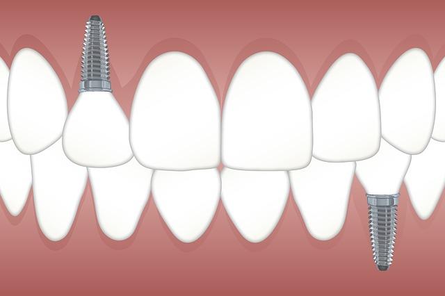 dental implants, best dental implants, dental implant, dental implants cost, dental implants nhs, dental implants cambridge, dental implants cambridge dentist, dentist with dental implants