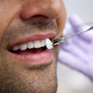 dental veneers, best dental veneers, veneers nhs dentist, nhs veneers, dental veneers cambridge, best dentist veneers, veneers dentist cambridge, porcelain veneers