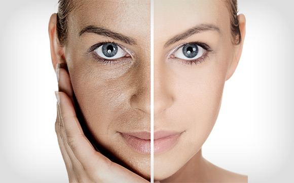 facial rejuvenation, facial rejuvenation fillers cambridge, facial rejuvenation dentist, botox treatment cambridge, dermal fillers cambridge