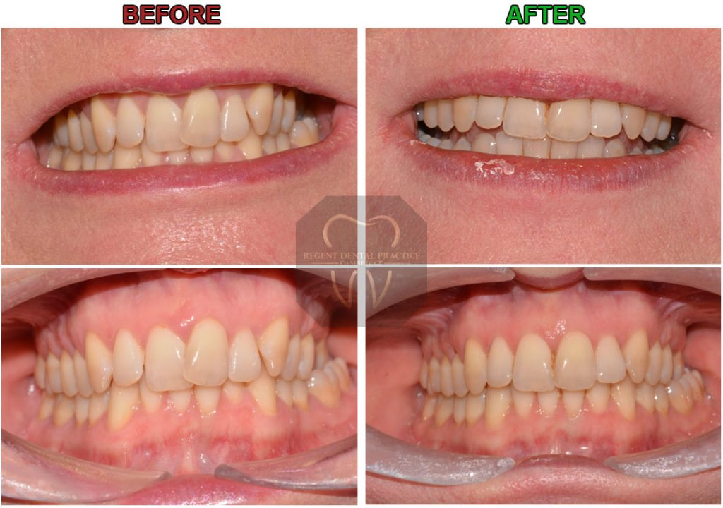 invisalign before and after, invisalign dentist cambridge, invisalign before after, invisalign cost, invisalign best dentist, straighten teeth invisalign