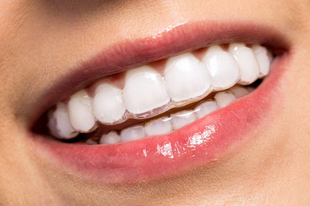invisalign, invisalign bracers, invisible bracers cost, best invisalign bracers, invisalign dentist, invisalign dentist cambridge, invisalign cost nhs, invisalign nhs treatment, invisalign treatment, invisalign regent dental practice