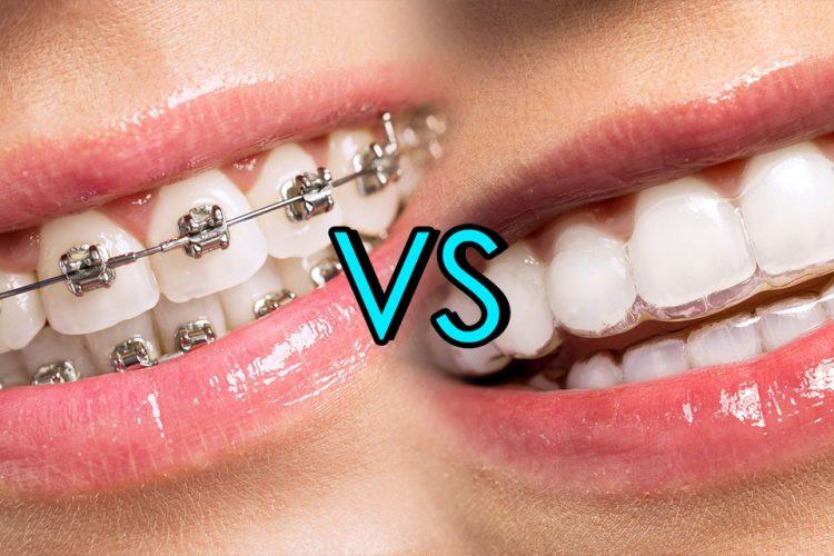 metallic braces or invisalign braces, metallic braces vs invisalign braces straight teeth, metallic braces or invisalign braces cost, invisalign cost, invisalign dentist cambridge, invisalign dentist nhs cambridge, best dentist invisalign, invisalign or metal braces, metallic or invisalign, invisalign cost, invisalign dentist cambridge