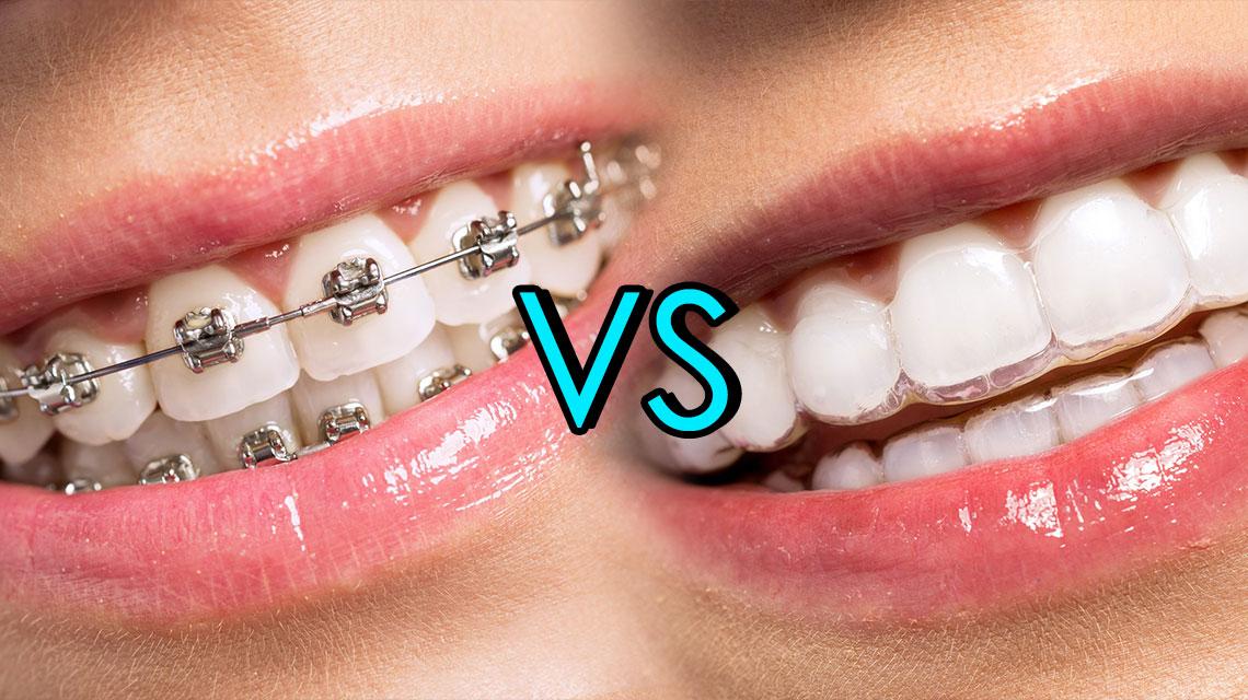 Image result for invisalign vs braces