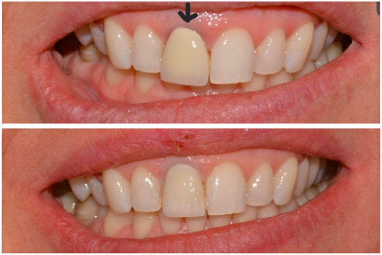 replacement crown, replace old crown dentistry, crown replacement dentist, crown replacement nhs dentist, replace dental crown dentist cambridge
