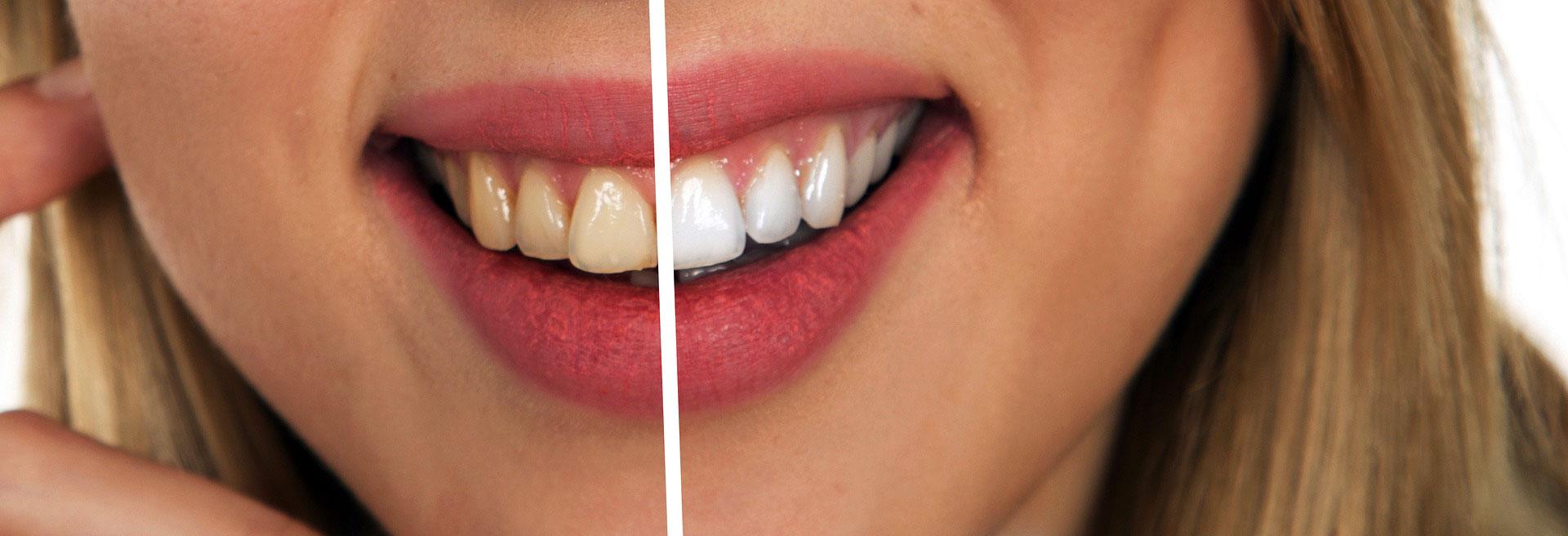 teeth whitening dentist, teeth whitening cambridge, best teeth whitening method, regent dental teeth whitening