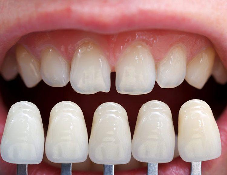 veneers, dental veneers, porcelain veneers, best porcelain veneers, veneers dentist, porcelain veneers nhs, porcelain dental veneers