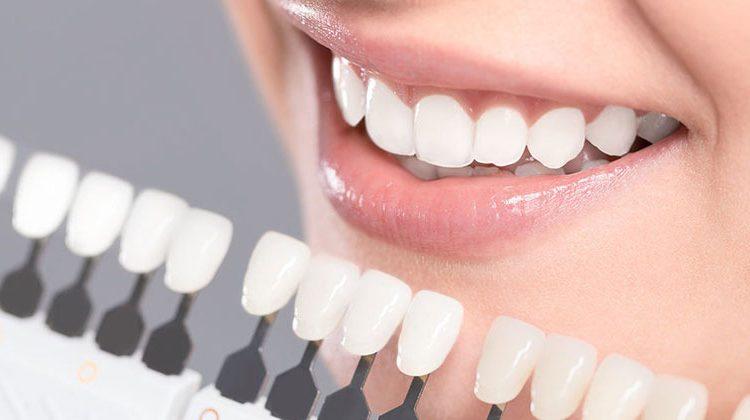 fillings, best fillings, white fillings, white fillings dentist cambridge, replace fillings dentist cost, replace fillings with white fillings