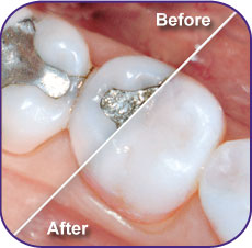fillings before and after, composite fillings dentist, white fillings cost